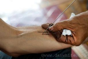 Close up of the Hand and Needle of Ajarn Kob of Ayuttaya - Photo by Dan White (R.I.P.)
